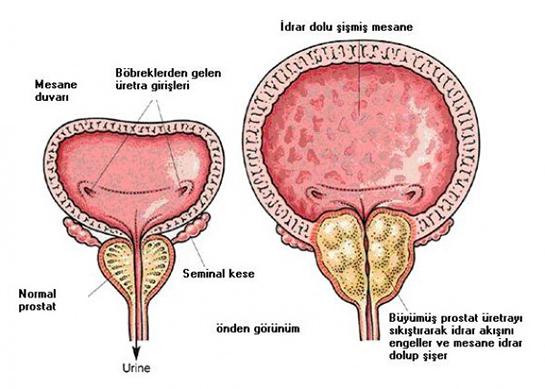 n40 benign prostat hiperplazisi