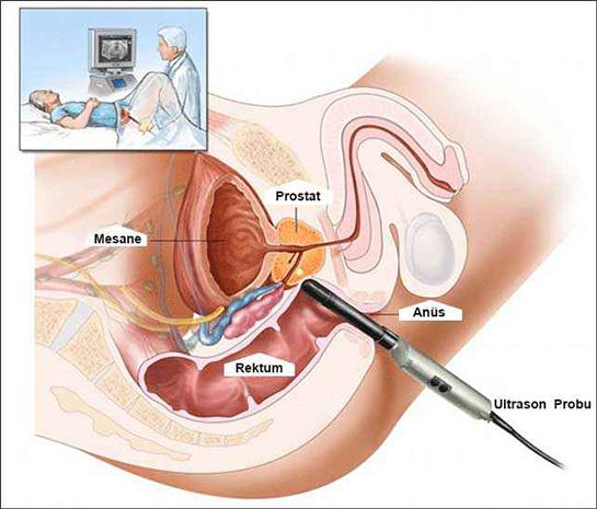 prostat ameliyatı riskleri