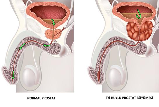 prostat nasıl küçülür